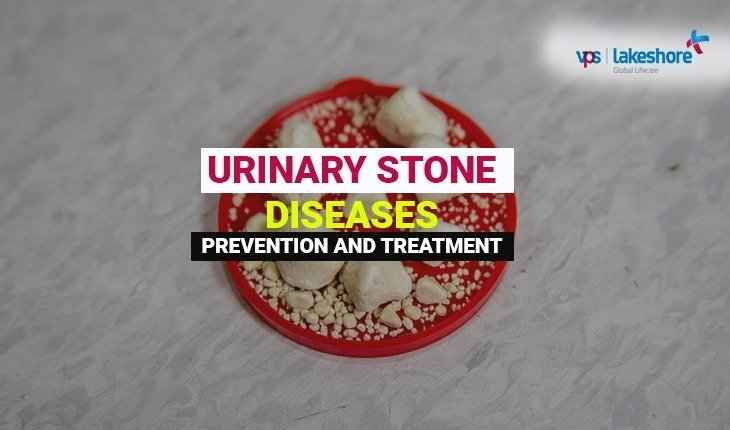 Urinary stone disease and management