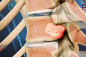 uploads/video/backpain-treatment-KSH6RqPBzFurKFM.jpg